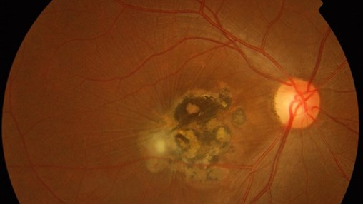 Role of Immune Cells in Macular Scarring Development Explored