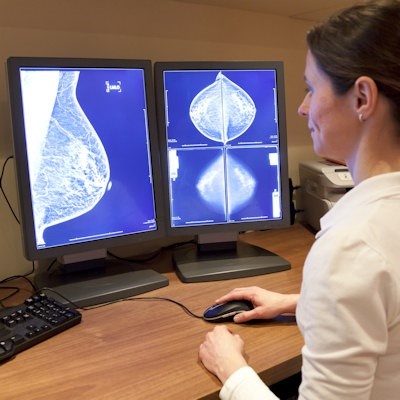 Should U.S. Radiologists Double Read Mammograms?