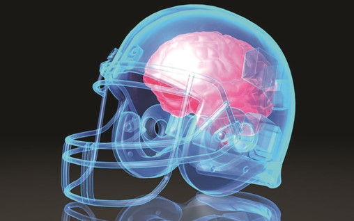Everyone Profits From Concussion Except the Athletes | Opinion