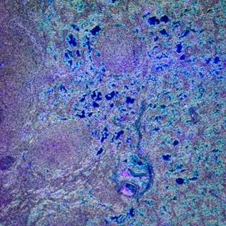 Obinutuzumab Plus Bendamustine Improves Progression-Free Survival in Non-Hodgkin Lymphoma